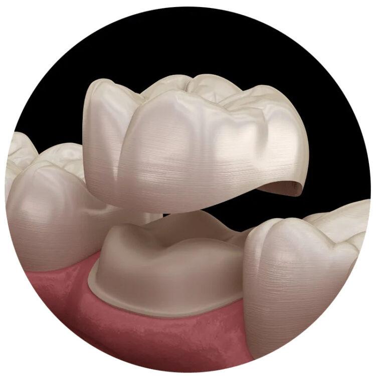 dental crown 750x750 - Зубні коронки за 1 день