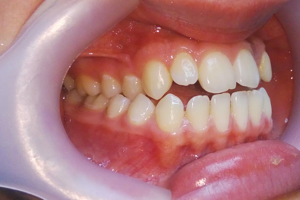 криві зуби
