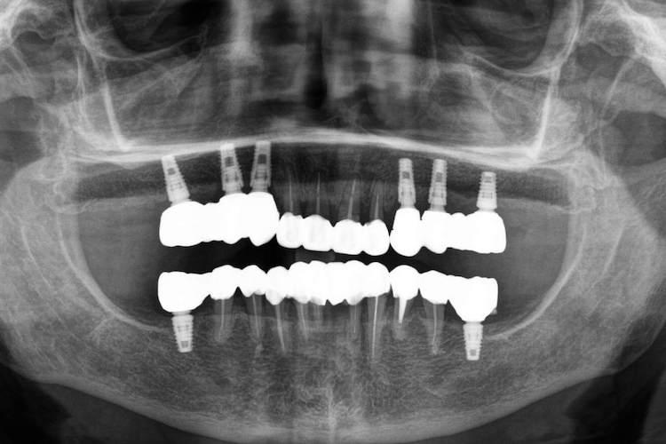 одномоментна імплантація зубів