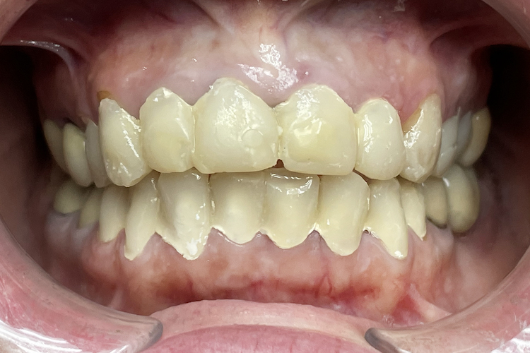 реставрация зубов