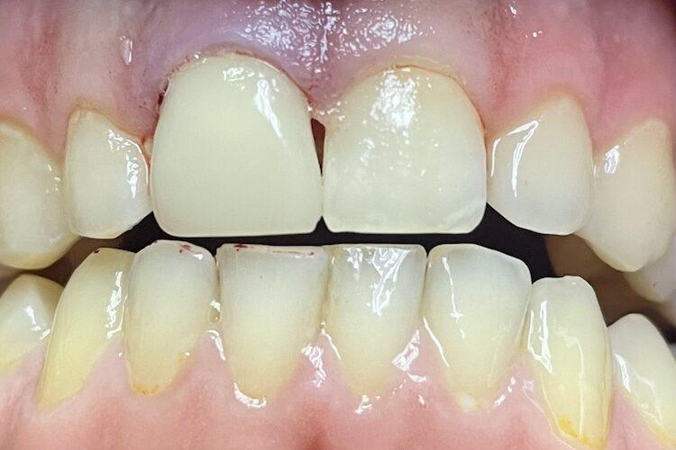 зубная коронка за 1 час